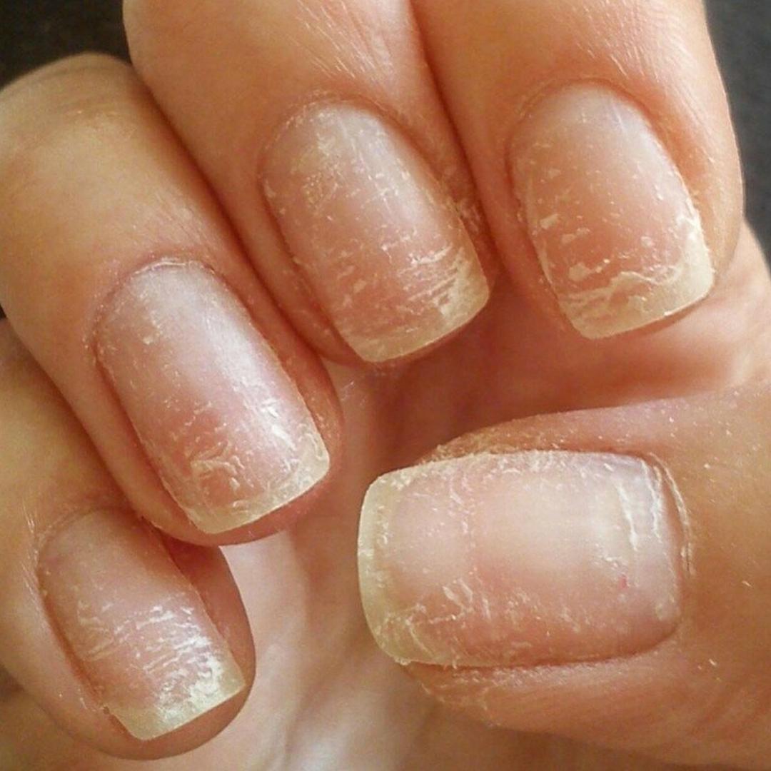 Lalila.Adore: Как снять гель-лак без вреда для ногтей.